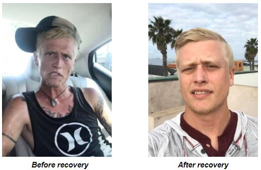 Before and after heroin addiction Cody