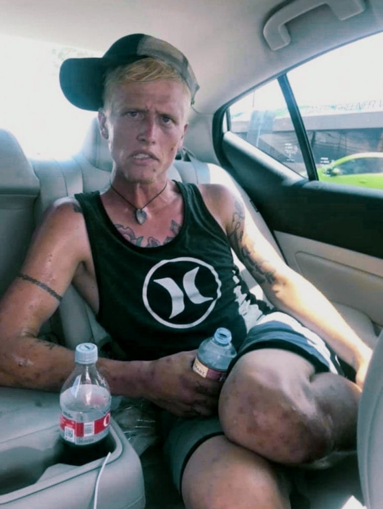 Cody heroin addiction before recovery picture