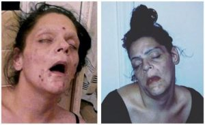 Melissa Heroin before and after pictures