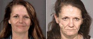 Meth before and after picture