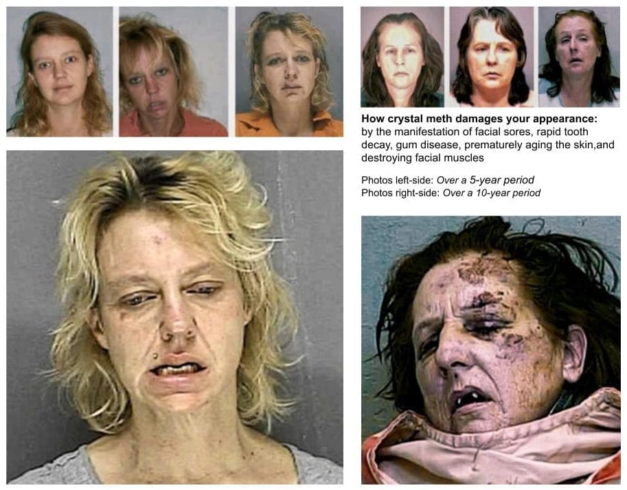 Cristal meth damage your appearance by the manifestation of facial sores, rapid tooth decay, gum disease, prematurely aging the skin, and destroying facial muscles