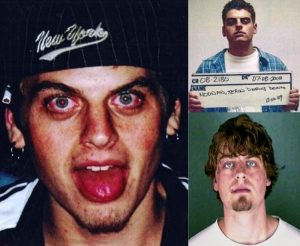 Terin before and after alcohol rehab